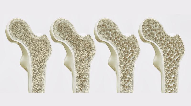 Osteoporoz tanımı, nedeni, belirtileri, tanısı, tedavisi ve nasıl önlenmeli ?