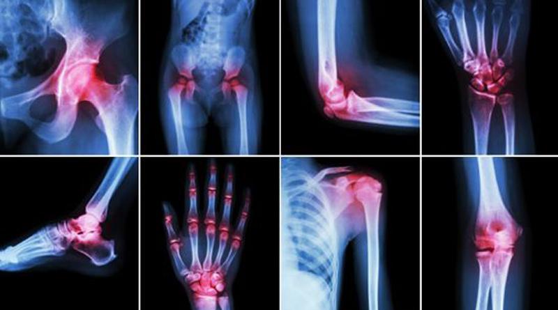 Artrit için bitkisel öneriler