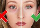 Göz altı morarma nedenleri