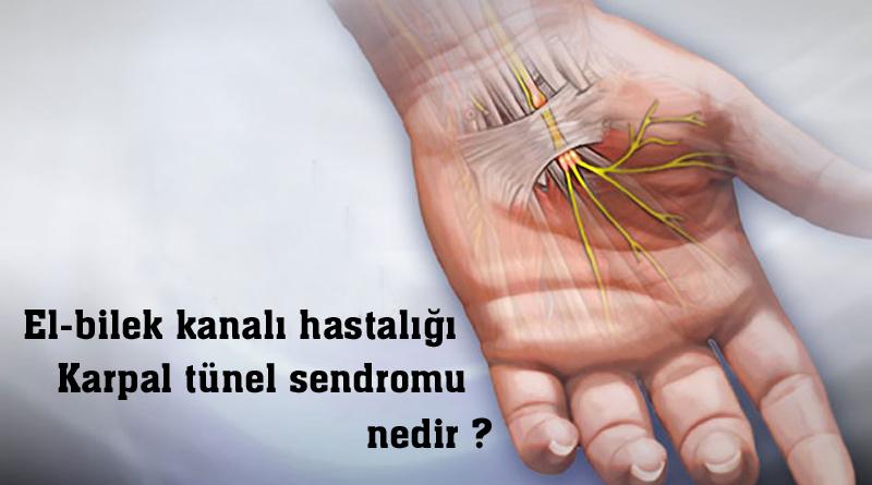 Karpal tünel sendromu ( El-bilek kanalı hastalığı ) nedir?